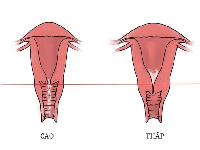 Vị trí cổ tử cung bất thường chắc chắn sẽ ảnh hưởng đến thiên chức làm mẹ của chị em phụ nữ.