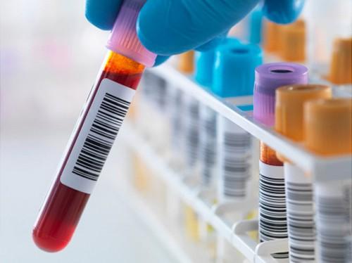 Để biết chính xác có bị mắc mụn rộp sinh dục hay không, bạn cần tiến hành các xét nghiệm