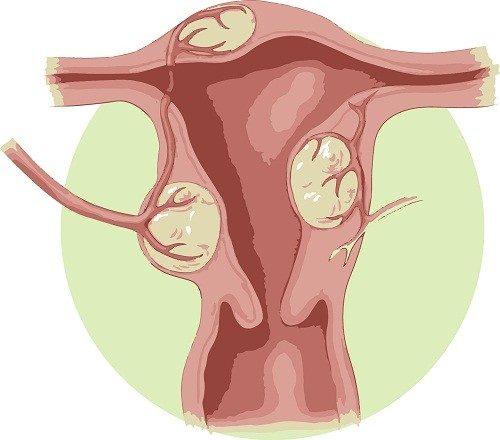 U xơ tử cung là tăng trưởng bất thường phát triển trong hoặc trên tử cung của người phụ nữ.