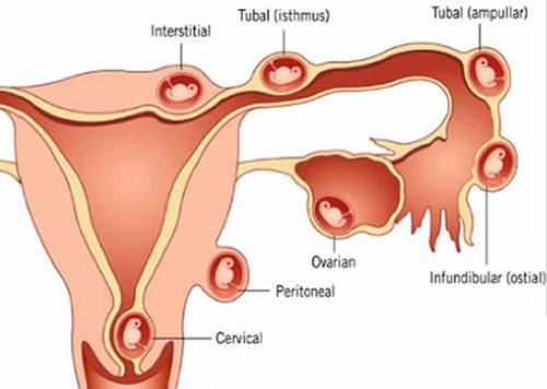 Mổ thai ngoài tử cung nên và không nên ăn gì