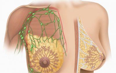 U nang nước tuyến vú và những điều cần biết