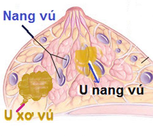 U nang tuyến vú là những túi chứa đầy nước trong vòng ngực