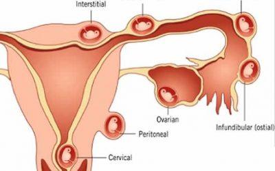 Mổ thai ngoài tử cung bao lâu quan hệ được?