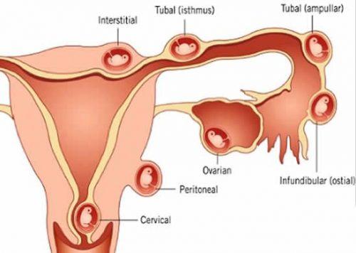 Vị trí thai ngoài tử cung