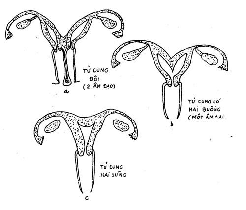 Mổ tử cung đôi có thể sinh con được không