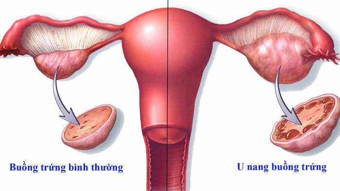 Hình ảnh u nang buồng trứng