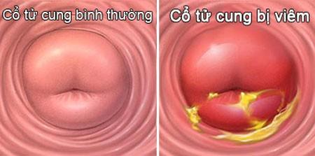 Hoặc là triệu chứng của viêm cổ tử cung