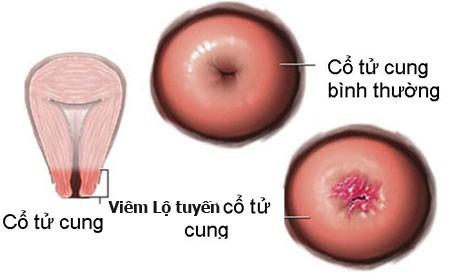 Viêm lộ tuyến cổ tử cung cũng gây hiện tượng khí hư màu xanh, vón cục
