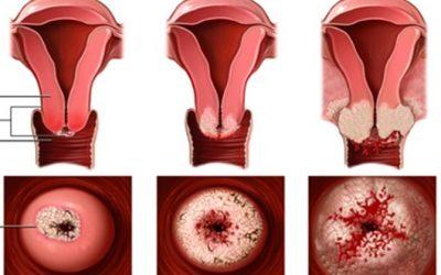 Viêm xung huyết cổ tử cung là gì?
