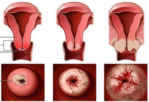 Xung huyết cổ tử cung là hiện tượng máu tăng cường ở cổ tử cung.