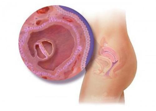 Túi noãn hoàng thường phát hiện ở tuần thứ 5 của thai kỳ