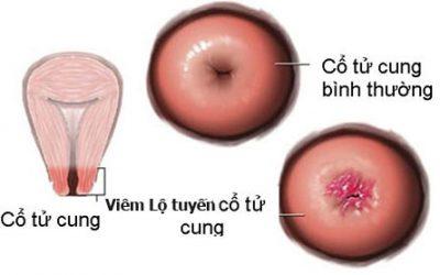 Viêm lộ tuyến cổ tử cung 0,5cm nên đốt không?