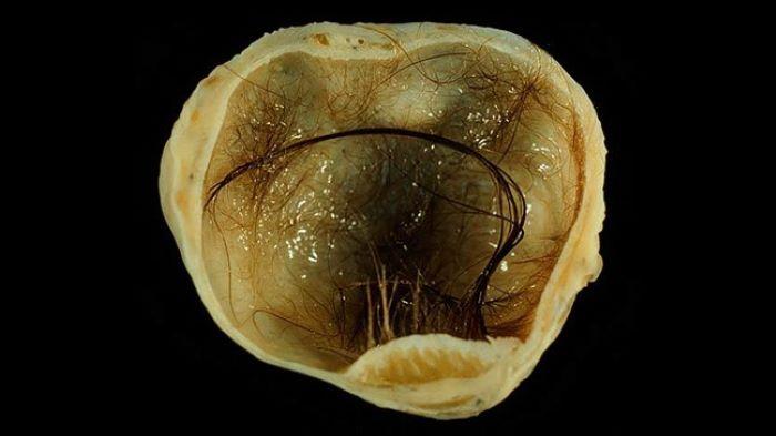 Hình ảnh của u nang bì buồng trứng