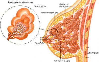 U đa nang tuyến vú là thế nào?