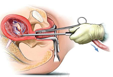 Nạo hút thai là nguyên nhân gây hở eo tử cung