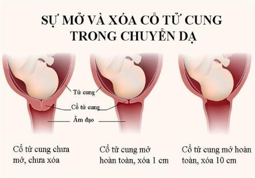 Độ xóa cổ tử cung khi mẹ bầu chuyển dạ