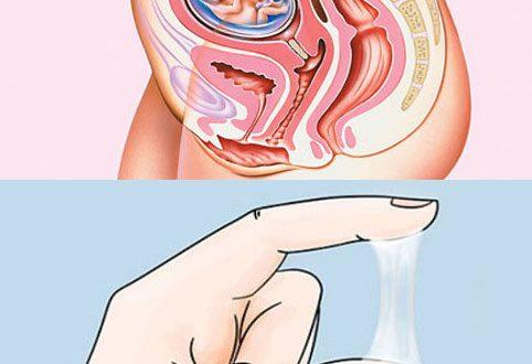 nút nhầy ở cổ tử cung trong thai kỳ