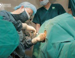 Kỹ thuật gây tê ngoài màng cứng và gây mê nội khí quản khi sinh
