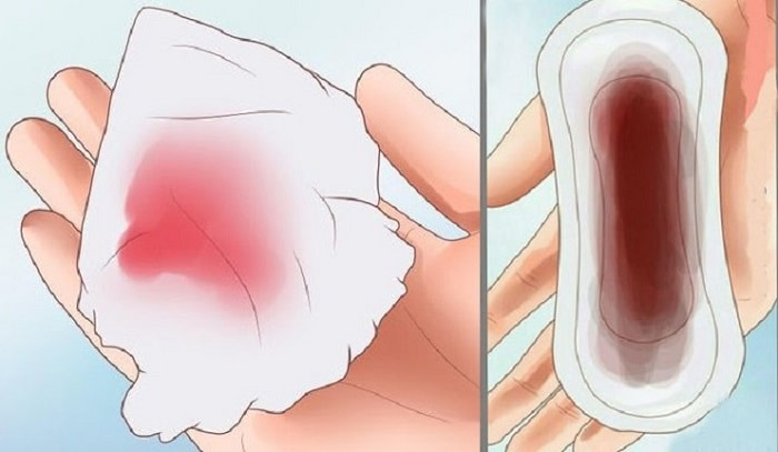 Sinh mổ 2 tháng vẫn ra máu có nguy hiểm không? 1