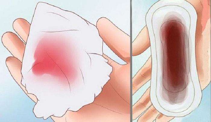 Sản dịch là hiện tượng bình thường sau sinh