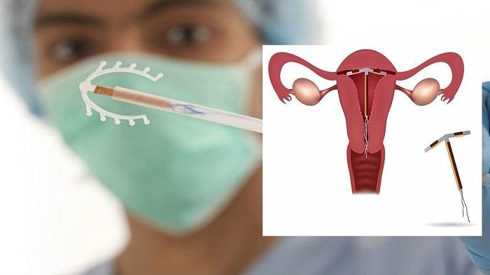 Vòng tránh thai là gì