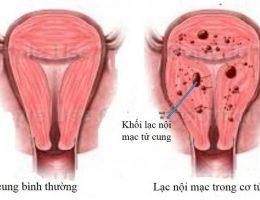 U nang buồng trứng và lạc nội mạc tử cung khác nhau thế nào?