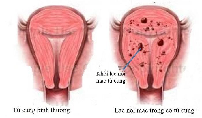 Lạc nội mạc tử cung ở nữ giới