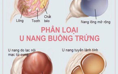 Bệnh u nang bì buồng trứng: Nguyên nhân và cách điều trị