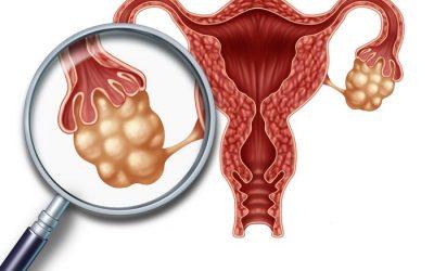 Phụ nữ bị buồng trứng đa nang có mang thai được không?