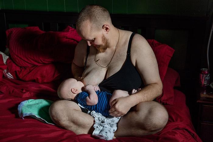 Người chuyển giới nữ muốn có con thì cần thu hoạch tinh trùng trước khi tiêm estrogen.