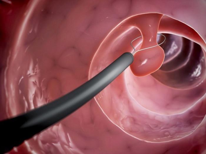 Cắt polyp cổ tử cung là một thủ thuật khá phổ biến được lựa chọn để loại bỏ polyp cổ tử cung.