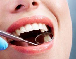Có thai nhổ răng được không?