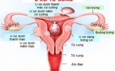 Mổ u xơ tử cung nằm viện bao lâu?