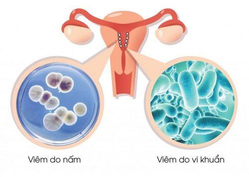 Viêm âm đạo do vi khuẩn là trường hợp âm đạo bị mất cân bằng về số lượng vi khuẩn