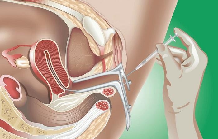 Tinh trùng qua chọn lọc được bơm vào buồng tử cung của người phụ nữ nhằm tăng khả năng thụ thai