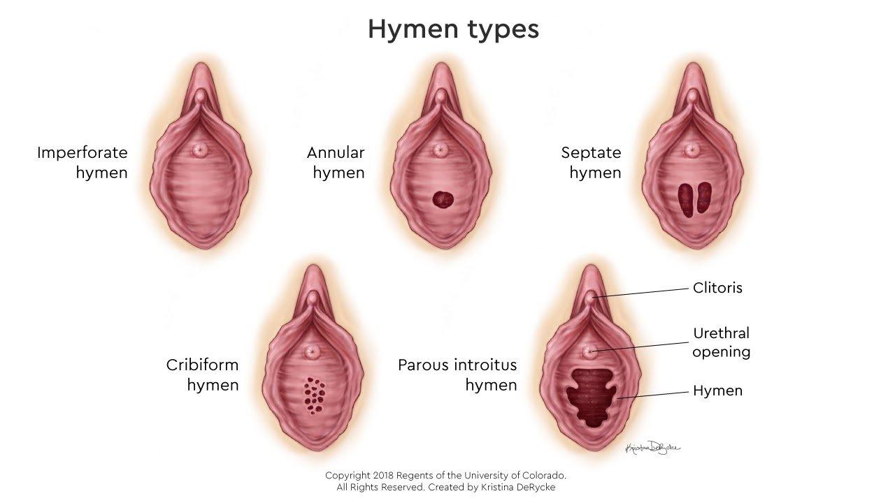 Chính giữa màng trinh có một, hai hoặc nhiều lỗ nhỏ để lưu thông máu kinh, tùy cơ thể mỗi phụ nữ khác nhau sẽ có kích thước lỗ khác nhau.