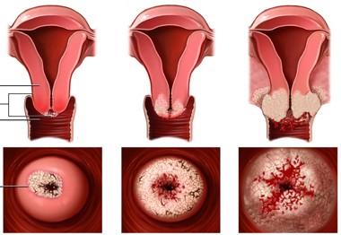 Chữa viêm cổ tử cung mạn tính