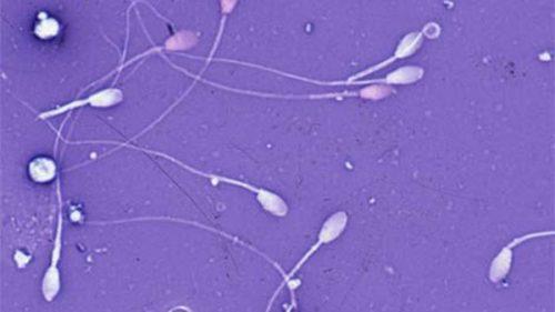 Tinh trùng yếu và ít: Nguyên nhân gây vô sinh nam