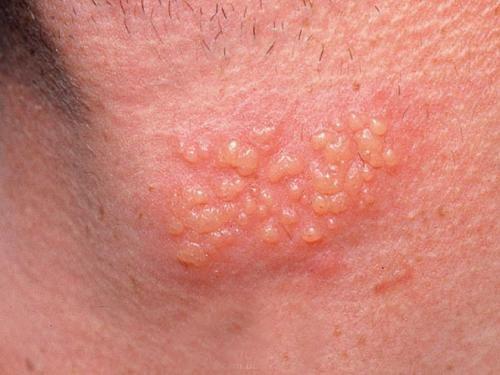 Bệnh Herpes sinh dục và các dấu hiệu nhận biết