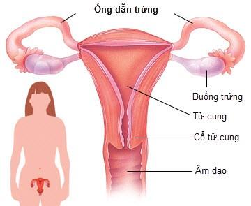 Hiểu về bệnh viêm nội mạc tử cung
