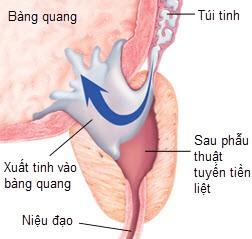xuat-tinh-nguoc-dong