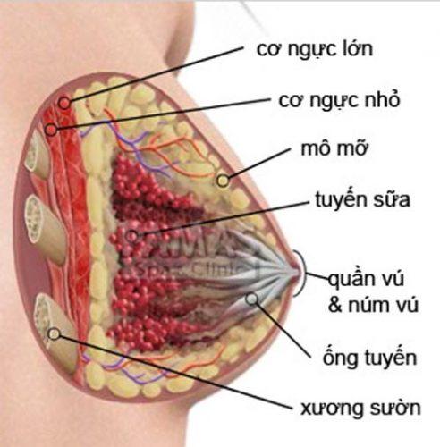 Điểm mặt các bệnh tuyến vú lành tính