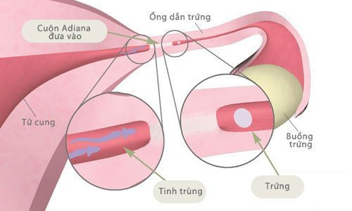 tac-ong-dan-trung-co-nguy-co-gay-vo-sinh2