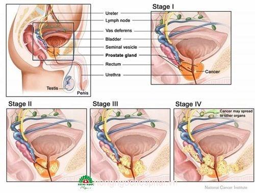 Viêm tuyến tiền liệt có thể dẫn tới hiếm muộn, vô sinh