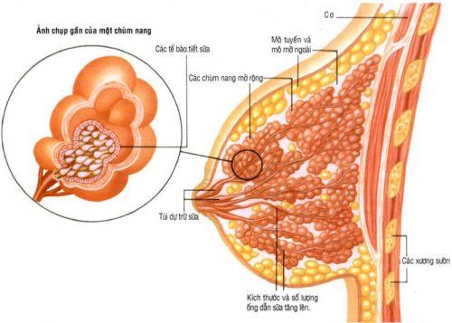 U nang tuyến vú và cách điều trị