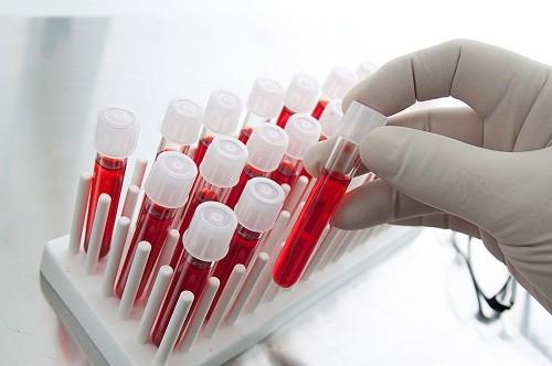 Xét nghiệm nàu giúp đánh giá số lượng bạch cầu, hồng cầu, tiểu cầu, nồng độ hemoglobin