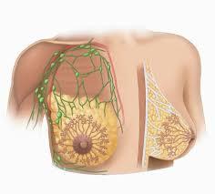 Triệu chứng xơ nang tuyến vú bạn có thể chưa biết
