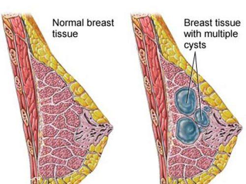 U xơ tuyến vú và cách điều trị