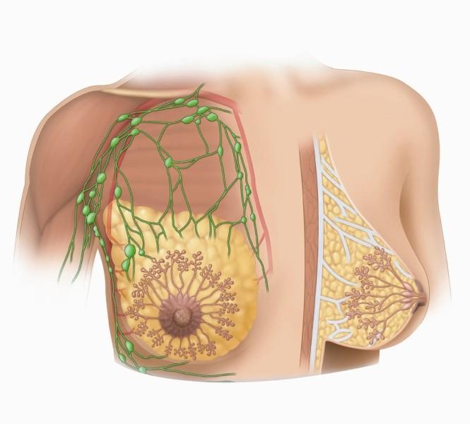 Cách chữa u nang tuyến vú