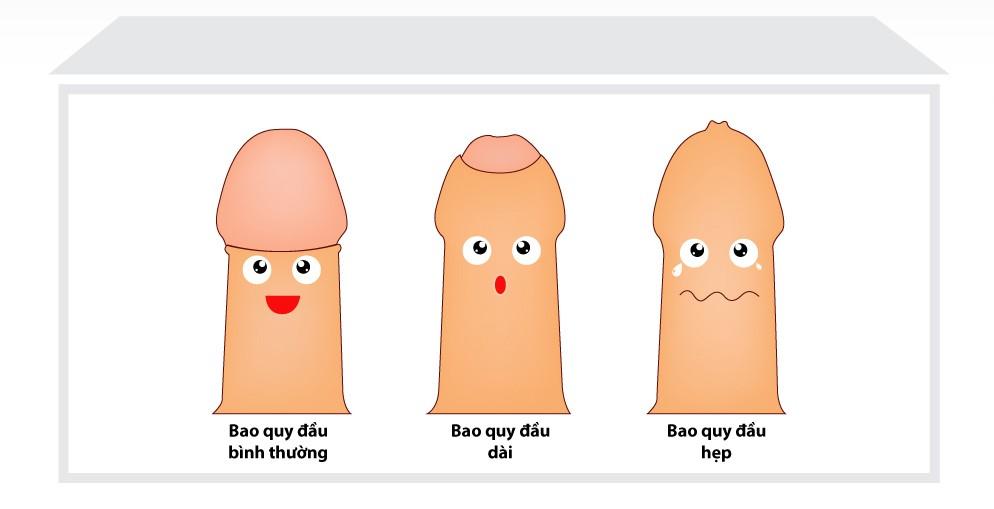 Hẹp bao quy đầu và biến chứng